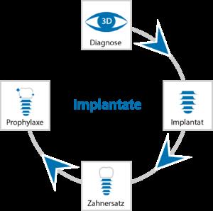 Der Weg zum Implantat